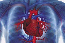 Ambassador Club Pécs - a szívkatéterezés forradalma, dr. Sárszegi Zsolt előadása